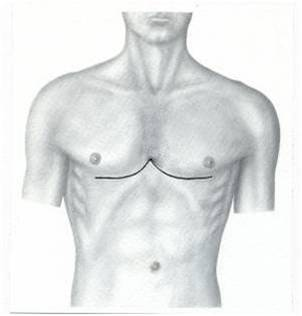 Лечение килеобразной деформации грудной клетки.Торакопластика по M. Ravitch