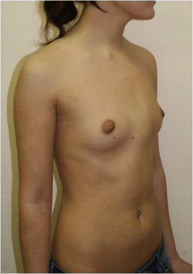 Девушка 20 лет с килевидной деформацией грудной клетки, симметричной формы